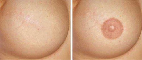 Немецкое порно женская грудь и ее сосок видео